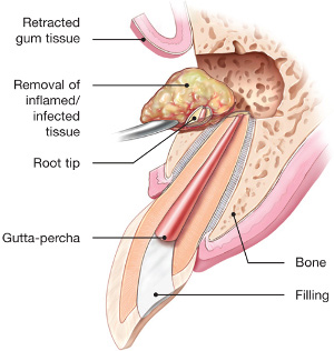 diagram of endontic surgery