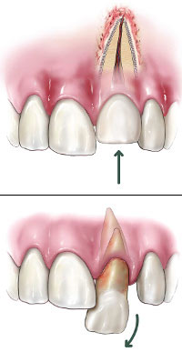 diagram of dislodged tooth