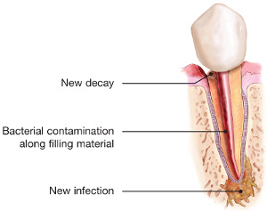 Infected tooth diagram