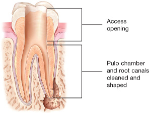 diagram of root access opening in tooth