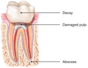 Diagram of tooth with damaged pulp
