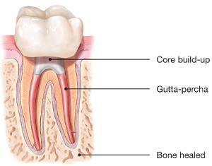 diagram of healed root canal