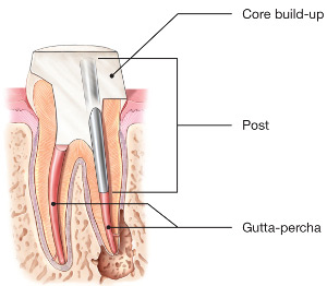 diagram of root canal with post
